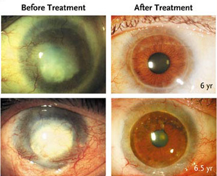 Corneal treatment