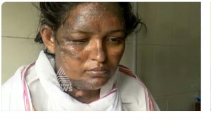 Communist Violence in Kerala bags another life, Vimala dies due to massive burn injuries after her house caught fire in an attack by left goons