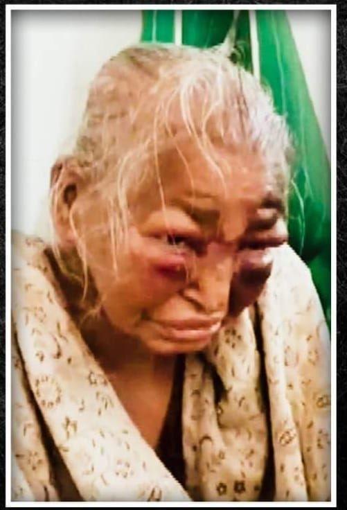 ಪ ಬಂಗಾಳ:  85 ವರ್ಷದ ವೃದ್ಧೆಯನ್ನು ಹತ್ಯೆ ಮಾಡಿದ ಟಿಎಂಸಿ